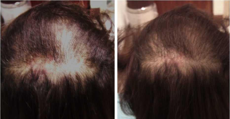 Carboxytherapy treatment for alopecia