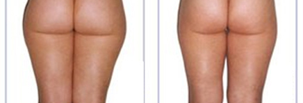 carboxitherapy for cellulite