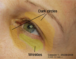 Strategy on wrinkles